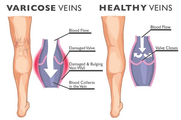 Laparoscopic varicose vein surgery   Dr. Kapil Kochhar MBBS MS ...
